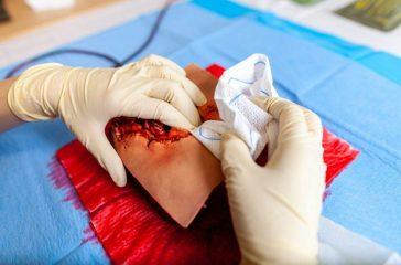 leczenie ran